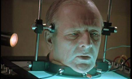 Возможна ли трансплантация головы?